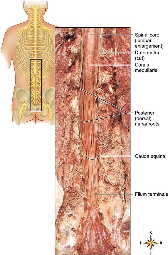 Central Nervous System Basicmedical Key Mri of conus medullaris, cauda equina, and filum terminale lesions. central nervous system basicmedical key
