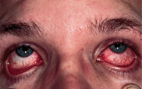 Конъюнктивит глаз у беременных 90