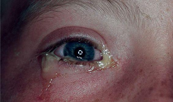 Inflamed (Red) Eye | Basicmedical Key