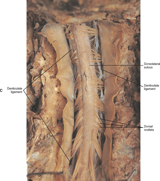 General Anatomy Of The Spinal Cord Basicmedical Key In the gross specimen locate the filum terminale. general anatomy of the spinal cord