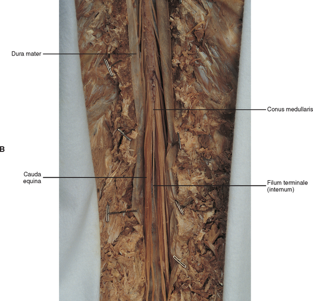 General Anatomy Of The Spinal Cord Basicmedical Key 312 x 308 png 139 кб. general anatomy of the spinal cord