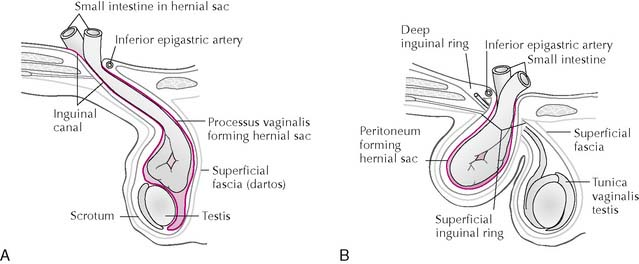 The Abdomen | Basicmedical Key