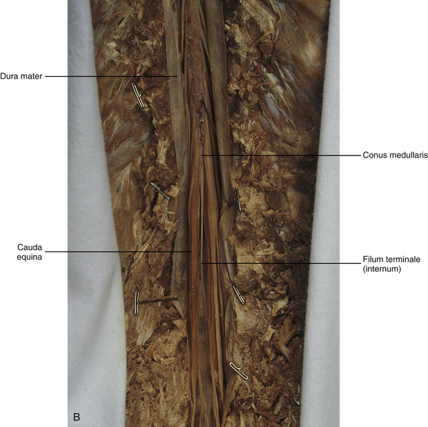 General Anatomy Of The Spinal Cord Basicmedical Key Recently, some have proposed that the extradural part of the filum terminale (fte) can be sectioned with equal results but with fewer complications. general anatomy of the spinal cord