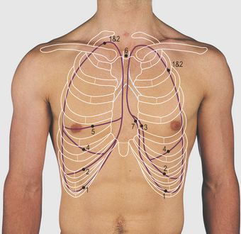 surface marking of lung Anatomy of lung posted by admin on october 11, 2010 leave a comment (0) go to comments surface markings of pleura 8 th rib- in anterior/mid clavicular line.