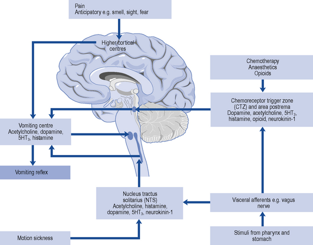 Nausea and vomiting Basicmedical Key