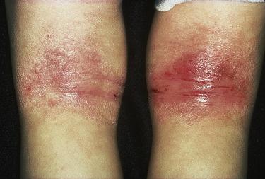 Eczema and psoriasis | Basicmedical Key