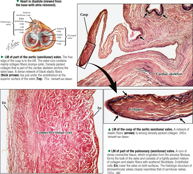 Communication on this topic: What Is Aortic Stenosis, what-is-aortic-stenosis/