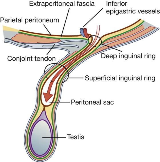 Superficial Inguinal Ring Vs Deep