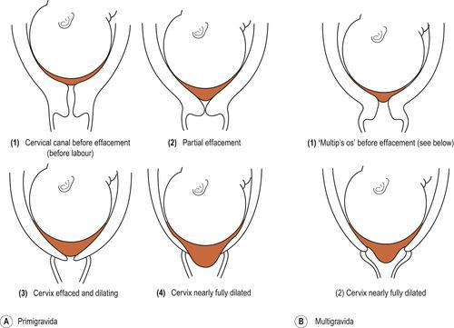 Почему у беременных короткая шейка матки 62