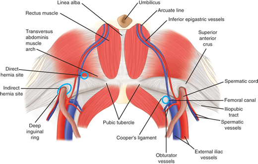 Inguinal Hernias   Basicmedical Key