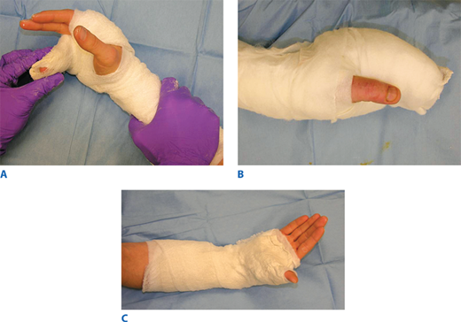 Surgery Of The Hand And Wrist Basicmedical Key