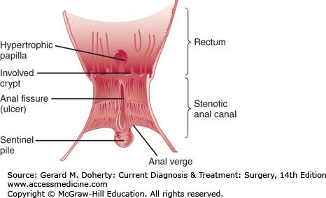 Anal Fissure Diagram