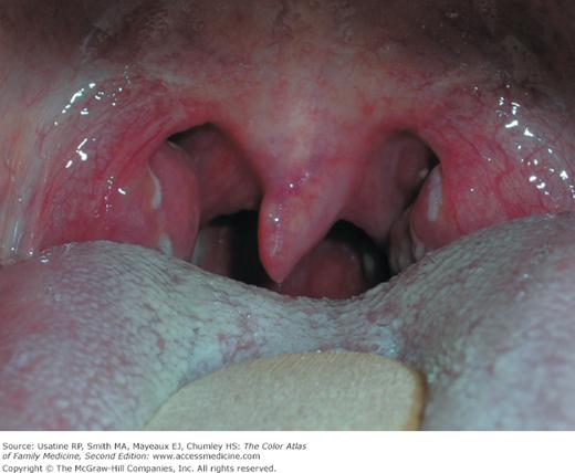 Pharyngitis | Basicmedical Key