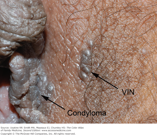 vulvar condyloma