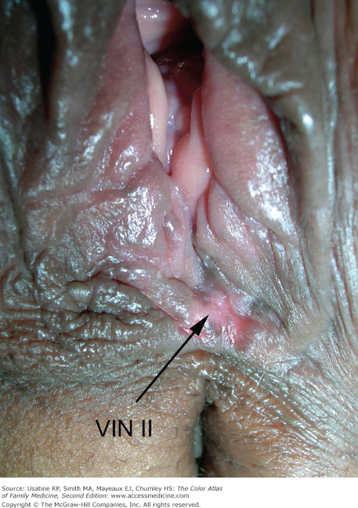Something vulva intraepithelial neoplasia join. All