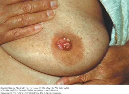 What Is Paget's Disease Of The Breast?