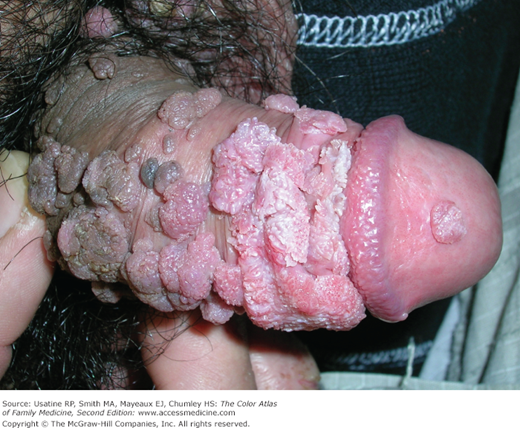 genital-oral-sex-wart