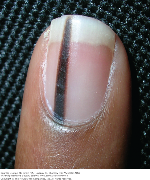 Pigmented Nail Disorders | Basicmedical Key