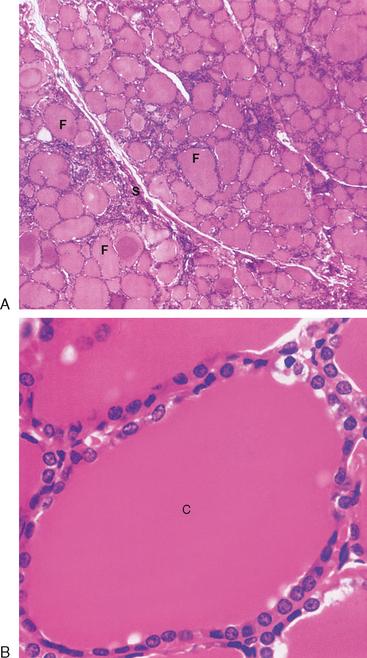 The Thyroid Gland Basicmedical Key