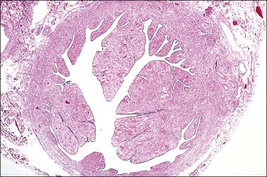 Fallopian Tube | Basicmedical Key