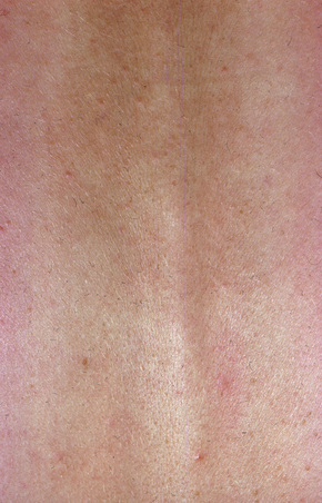 Superficial and deep perivascular inflammatory dermatoses