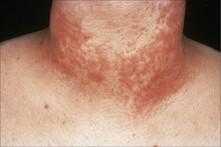 Superficial and deep perivascular inflammatory dermatoses