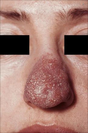 lupus pernio