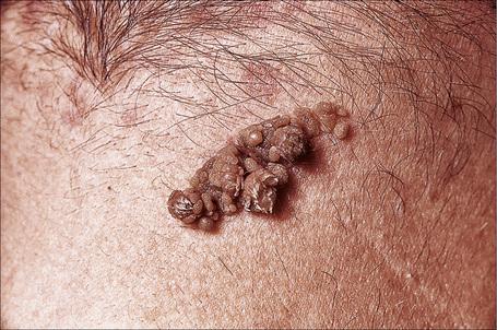 Papillomatous epidermal nevus - Papillomatous epidermal nevus