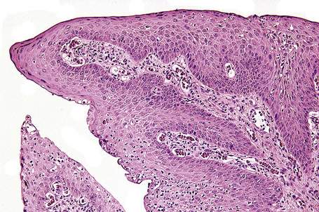Conjunctival Squamous Cell Carcinoma