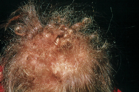 Multiple hairy nevus and black speck