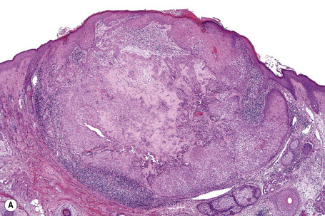 Trichilemmoma histology