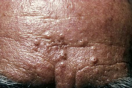 Sebaceous Hyperplasia On Penis