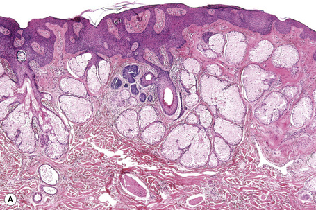 Tumors and related lesions of the sebaceous glands ...  Tumors and rela...