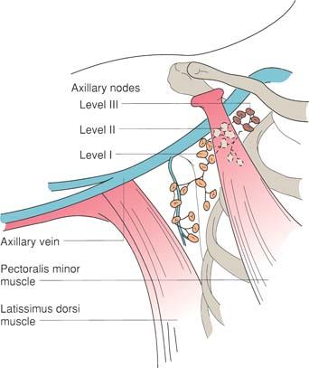 axillary node biopsy and axillary node dissection | basicmedical key, Cephalic Vein