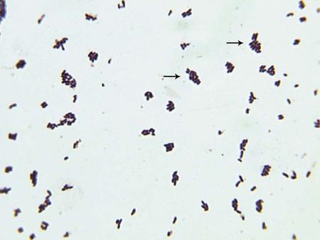 Caseous Lymphadenitis of Sheep and Goats  Circulatory