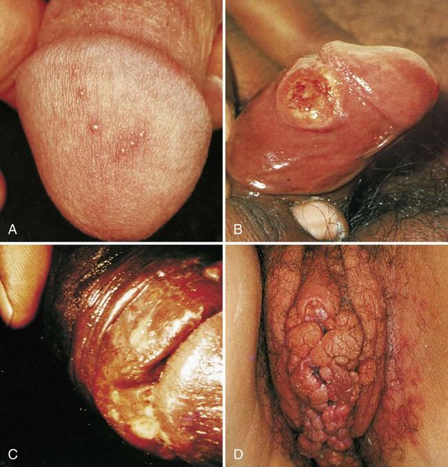 Vaginal Warts Symptoms