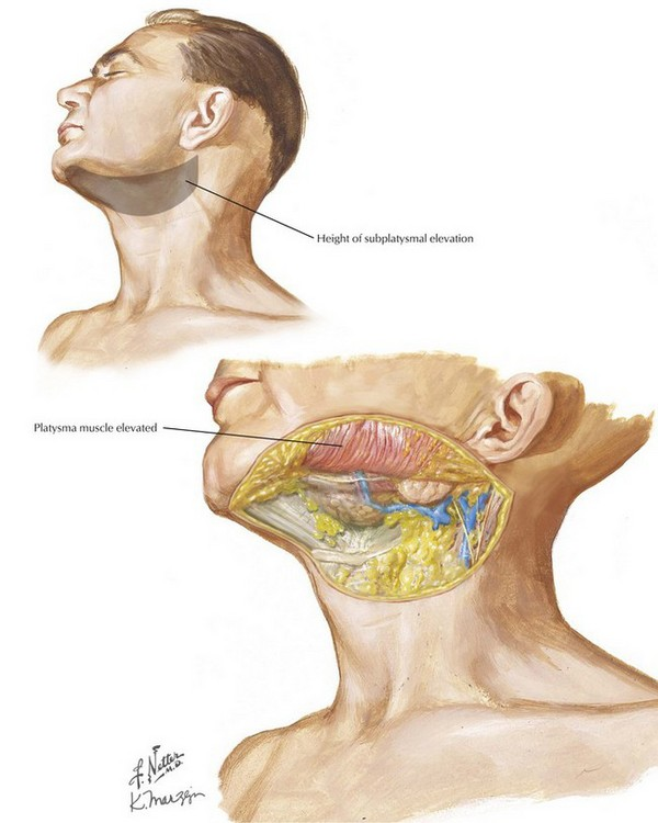 Selective (Supraomohyoid) Neck Dissection, Levels I-III ...