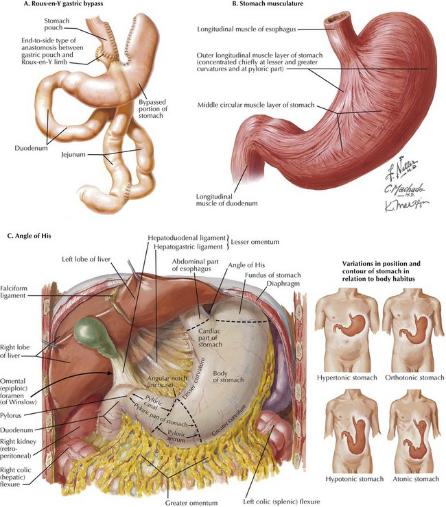 laparoscopic roux-en-y gastric bypass | basicmedical key, Human Body