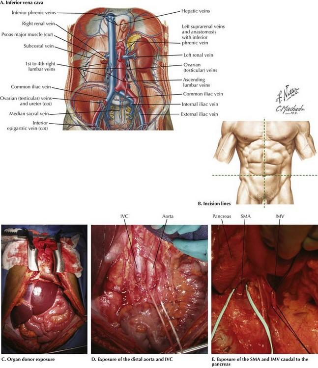 Organ Transplantation | Basicmedical Key