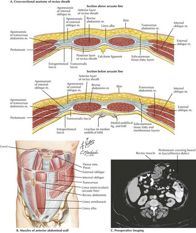 Abdomen Sites: Abdominal Wall Anatomy And Ostomy Sites