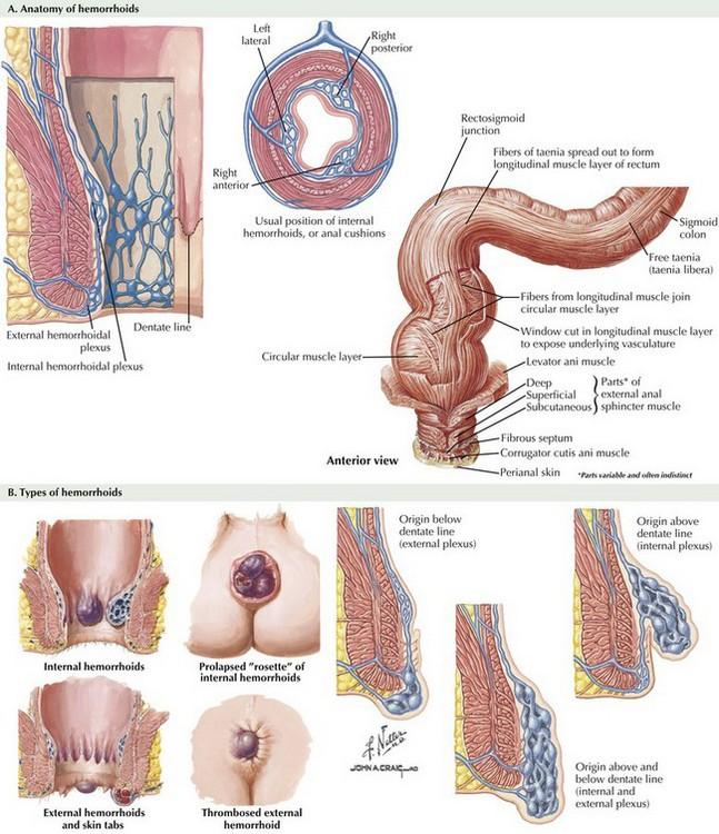 Hemorrhoids And Hemorrhoidectomy Basicmedical Key