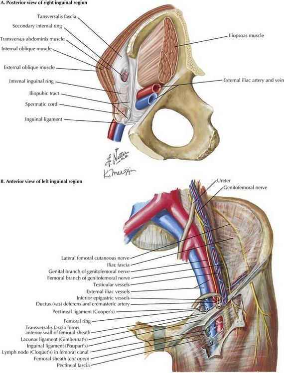 Laparoscopic Inguinal Hernia Repair Basicmedical Key