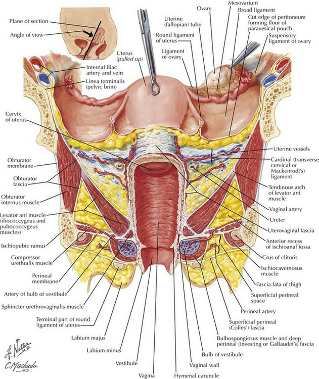 hysterectomy anatomy - Gecce.tackletarts.co