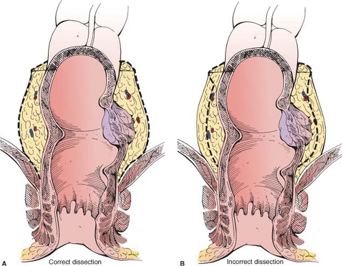 Anterior and Low Anterior Resection of the Rectum | Basicmedical Key