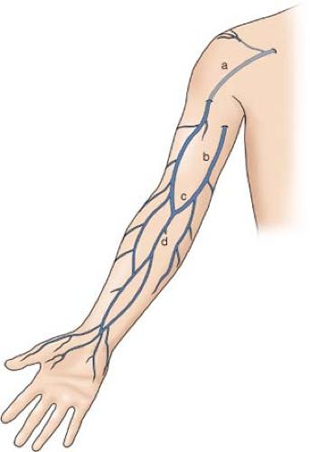 alternative vein bypass | basicmedical key, Cephalic Vein