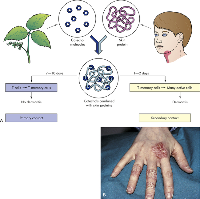 delayed hypersensitivity reaction to poison ivy American nurse today click  be prepared for poison ivy,  the allergic contact dermatitis that follows exposure to urushiol is a delayed hypersensitivity reaction.