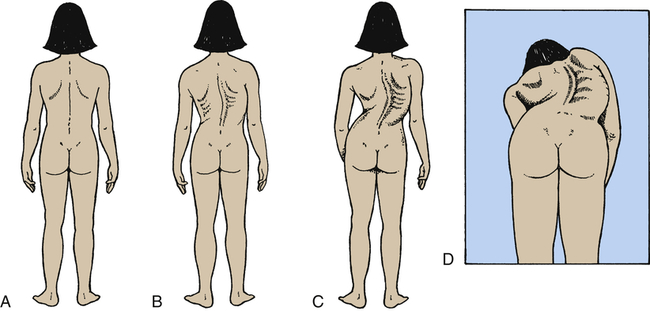 compare and contrast structural and nonstructural curvatures of the spine Scoliosis is a condition in which there is a sideways curvature of the spine what is scoliosis nonstructural scoliosis is when the spine is structurally.