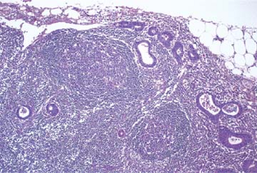 cancer metastatic to lymph nodes)