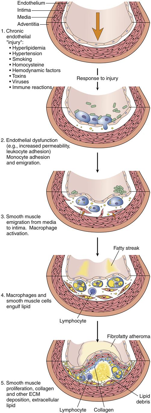 pathogenic etiology of atherosclerosis The world health organization defines atherosclerosis as a chronic vascular disease of medium and large arteries that includes thickening and remodeling of the vessel wall leading to reduction or.