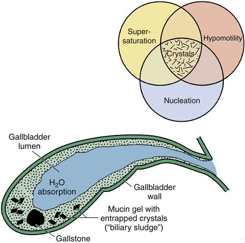 Alterations in function of the gallbladder and exocrine pancreas figure 37 6 three principal phases responsible for the formation of cholesterol gallstones illustrated with a venn diagram ccuart Images